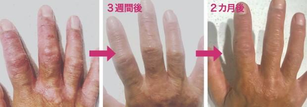 hand_ba